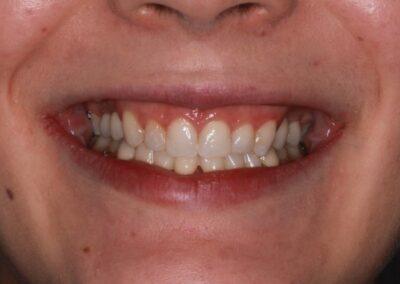 Dívka s 9ti nezaloženými zuby
